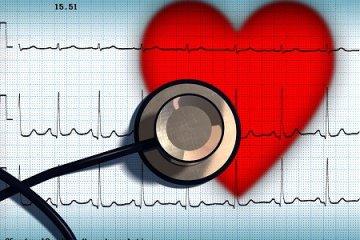 Mikor szükséges a 24 órás Holter EKG?
