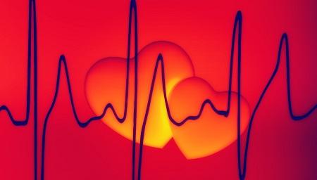 Ritkább szívritmuszavarok diagnosztizálásában segíthet a 48 órás EKG