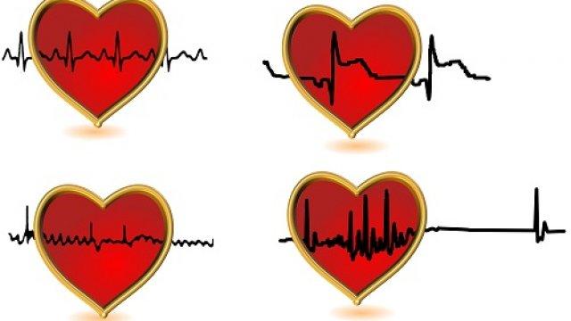 Mikor ajánlott és mikor nem a terheléses EKG?