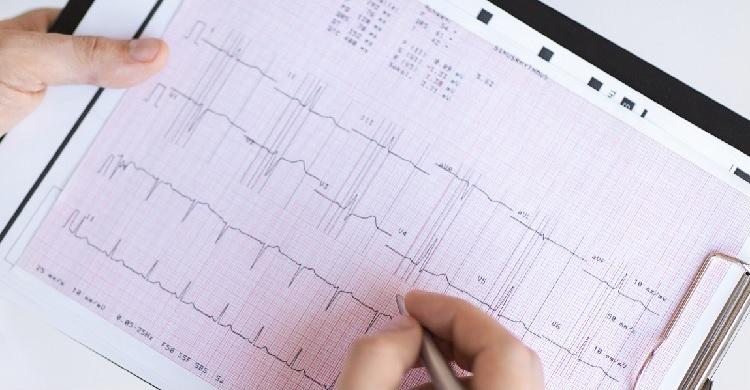 12 elvezetéses EKG vizsgálat