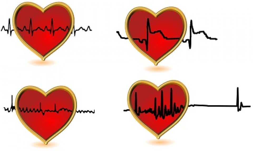 Egyes szívdobbanások előre vetíthetik a szívritmuszavart