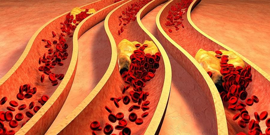 Az E-cigaretta biztonságos Your Heart - Capital Kardiológia Associates