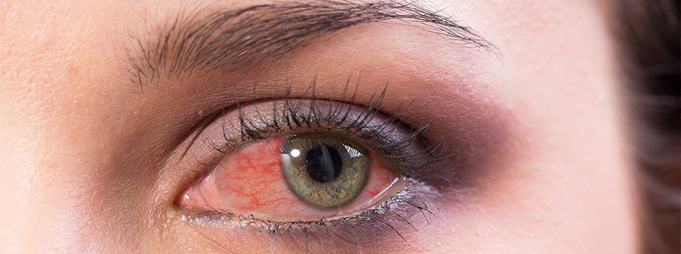 a látás vizsgálatának ellenőrzési módszerei vizuális vizsgálat IVC-re