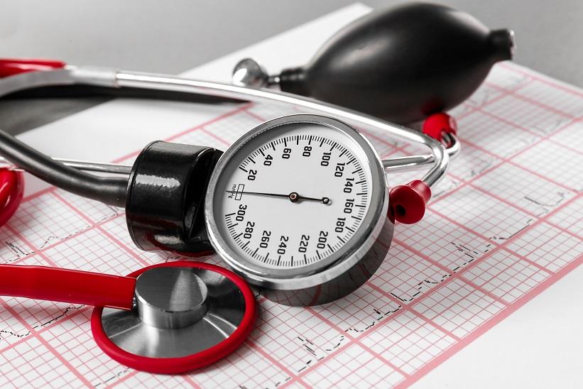 A stroke kialakulás megelőzhető