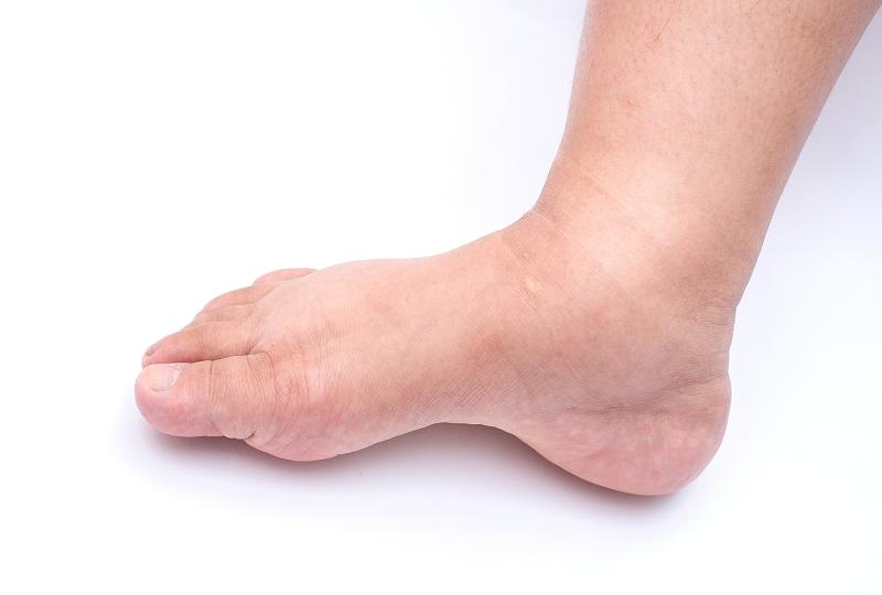 a lábak és a boka duzzanata