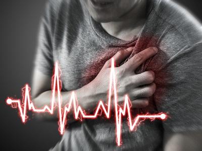 magas pulzus szívritmuszavar kardiológia
