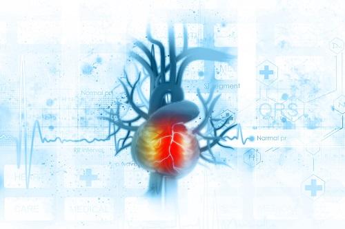 szívinfarktus angina mellkasi fájdalom